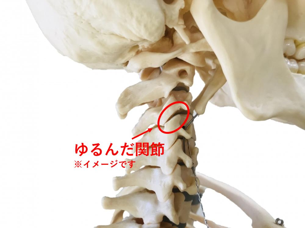 首の関節とゆるみ