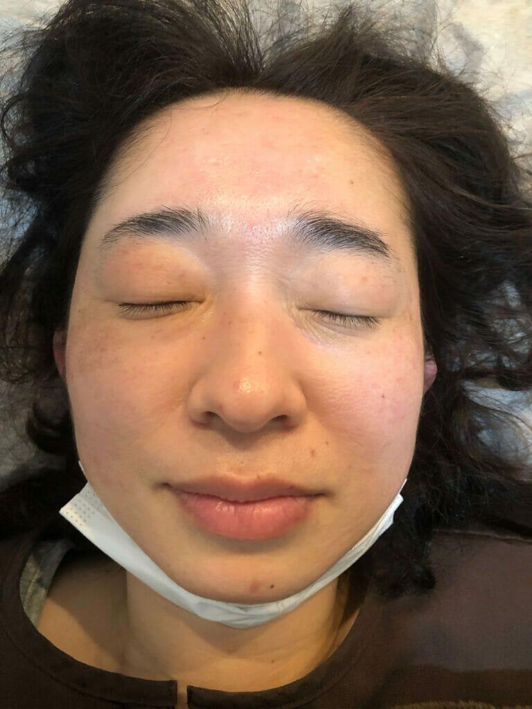 美容鍼の後のお顔